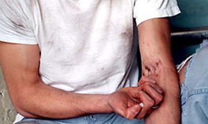 Innovatieve drugsdealer levert glutenvrije heroïne aan verslaafden met chronische darmaandoening
