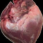 Medische primeur: Topbankier leeft probleemloos zonder hart