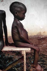 Dit kindje wacht op een traditionele Somalische Waterzooi